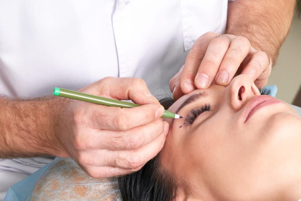 Eyelid Surgical