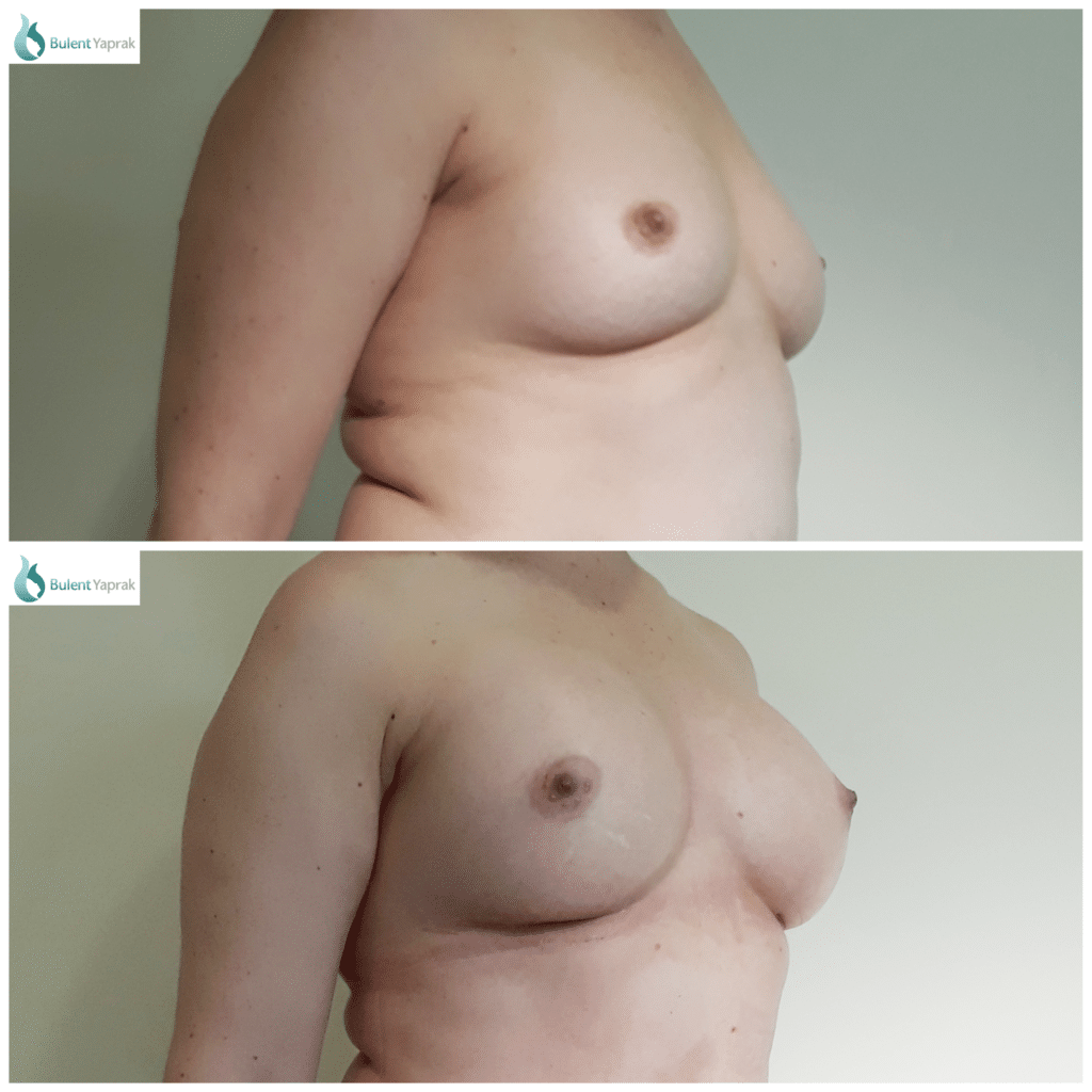 Breast Implant Before and After Bulent Yaprak
