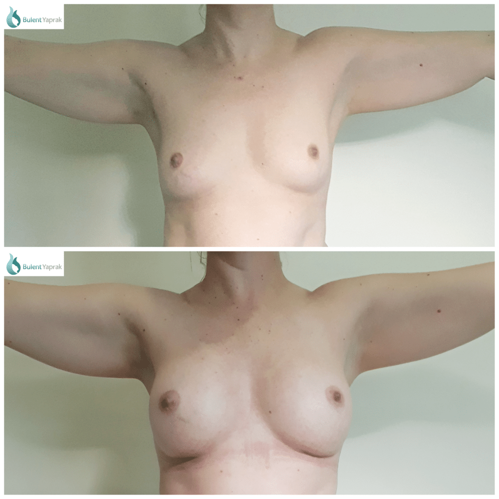 Breast Enlargement before and after Bulent Yaprak