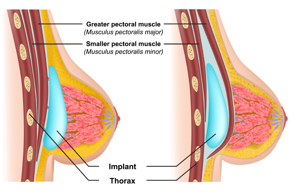 Breast Enlargement - Implant Placement