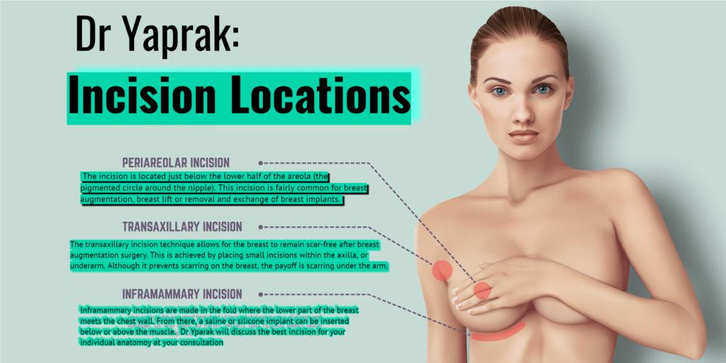 Breast Enlargement Bulent Yaprak
