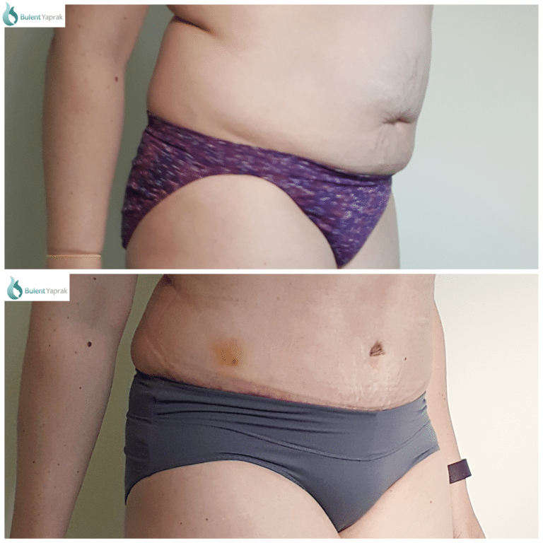 Tummy tuck abdominoplasty pateint Plastic Sugery before and after side on