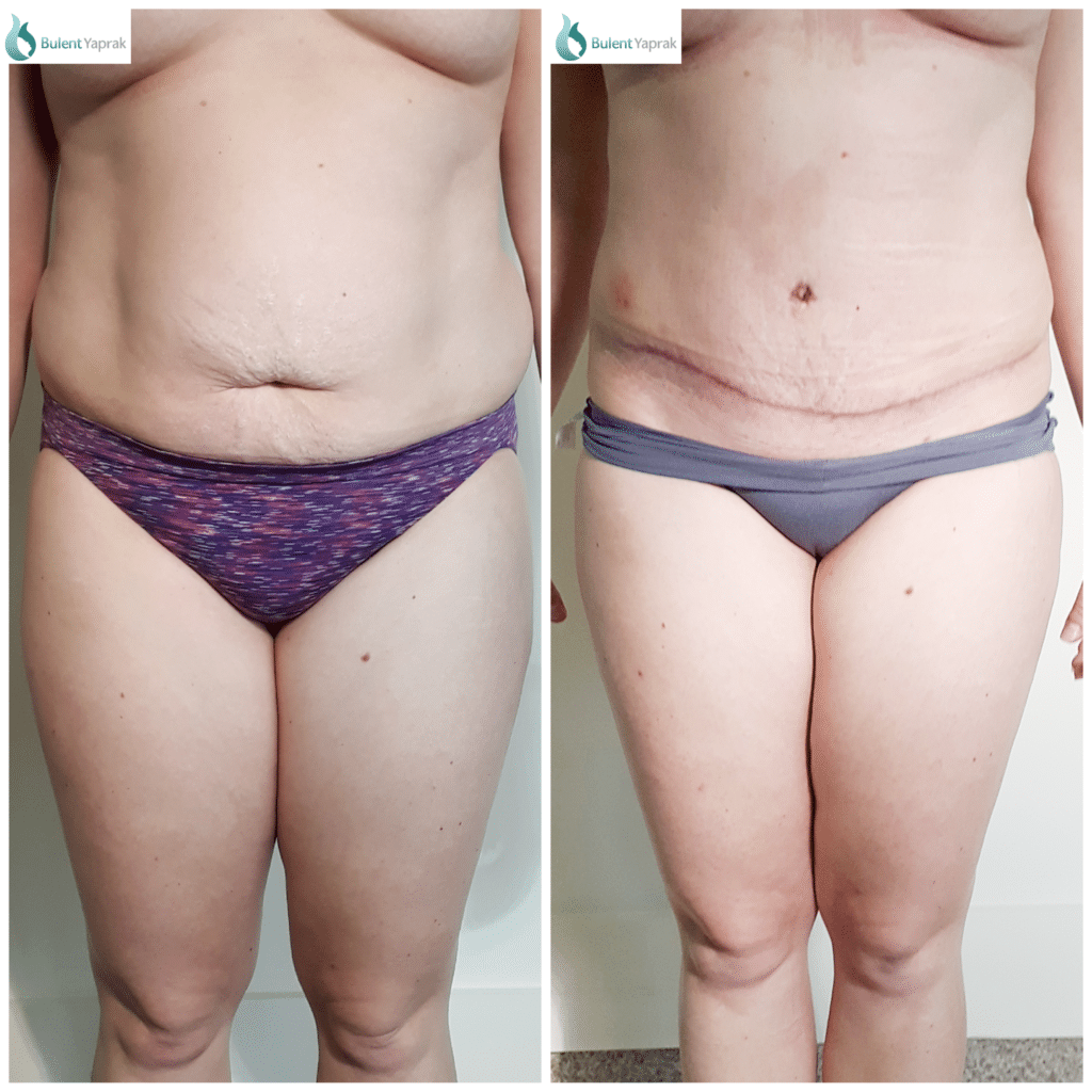 Tummy tuck Before and After Bulent Yaprak