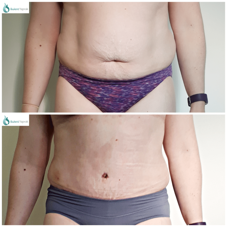 Abdominoplasty before and after photos by Plastic Surgeon Dr Yaprak New Zealand plastic surgeon