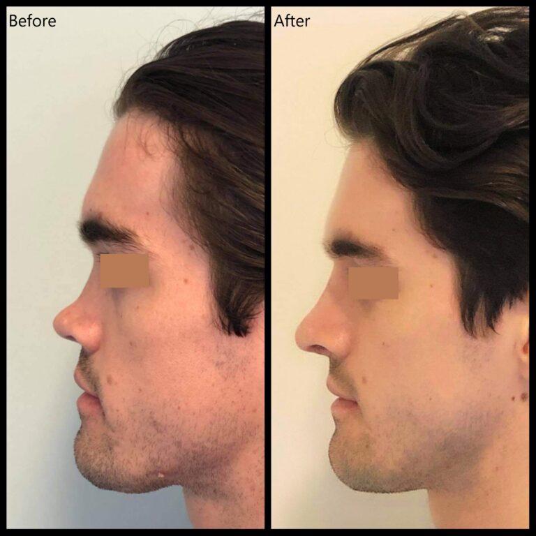 Rhinoplasty patient nose job surgery New Zealand