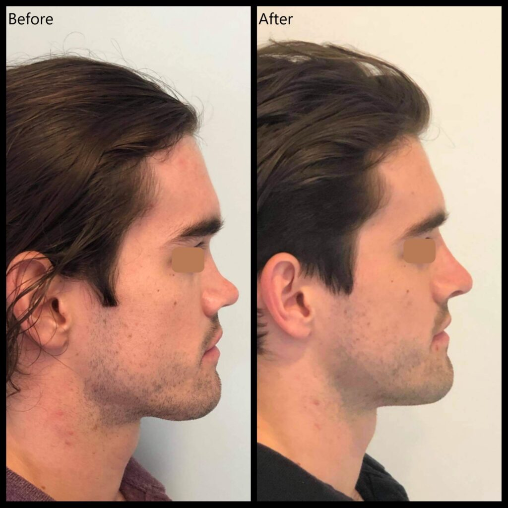Rhinoplasty before and after photo by Dr Yaprak
