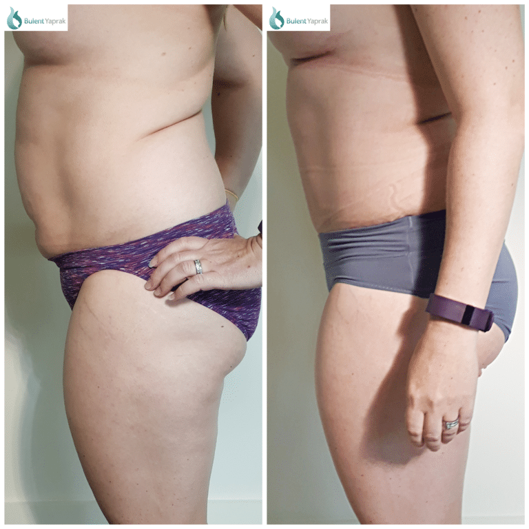 Tummy tuck befodre and after side on photo
